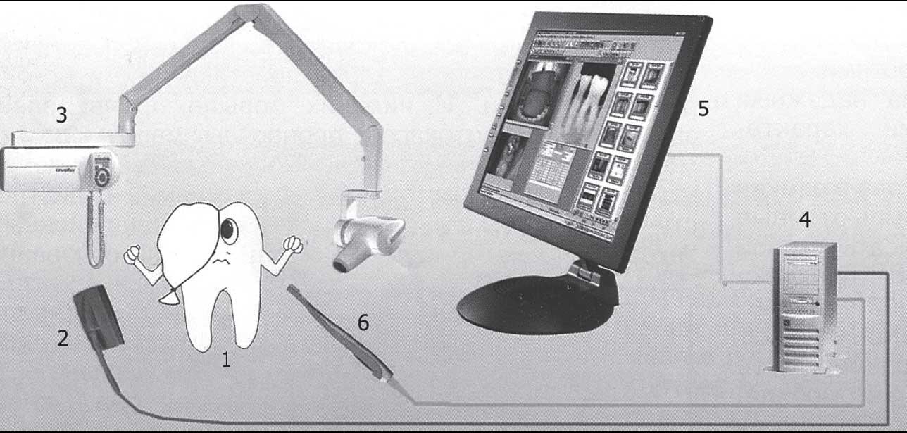 Рис. 1. Схема радиовизиографа: 1- зуб, 2- датчик, 3 - рентгеновский аппарат, 4 - компьютер, 5 - монитор, 6...
