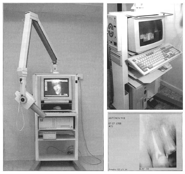 мобильностью рентгеновской