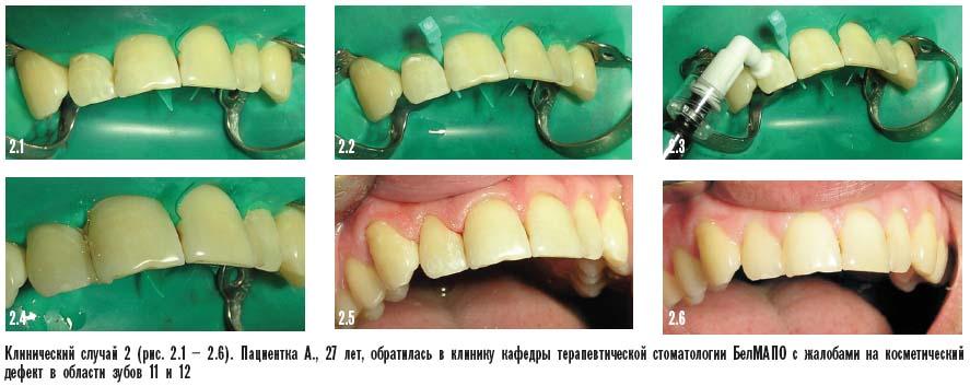 icon в стоматологии инструкция