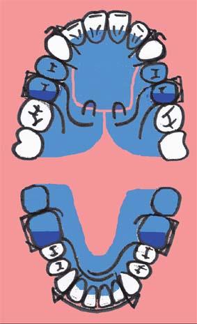 Схема твин-блока для лечения