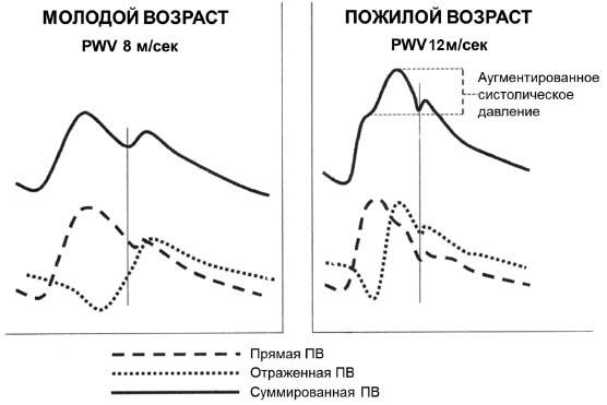 Гипертонический криз 2 степени лечение