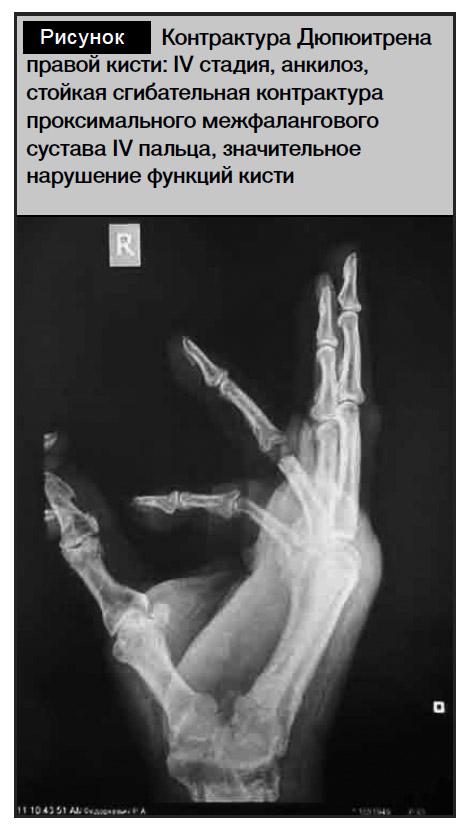 Анкилоз межфаланговых суставов узи плечевого сустава ярославль